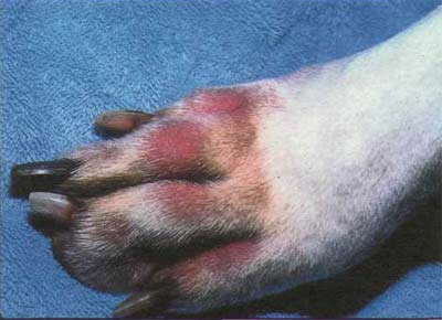 Как вылечить атопический дерматит форум