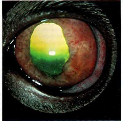 Диффузная инфильтрация лимфомы в радужной оболочке глаза