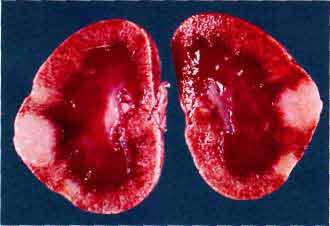 Изменение формы почки кошки, вызванное очаговой инфильтрацией лимфомой